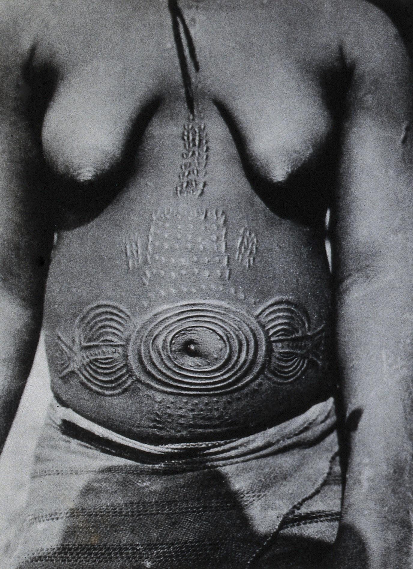 Näide armistamisest Munshi hõimu naiste juures, Nigeerias. Foto: Wellcome Collection (CC BY 2.0)
