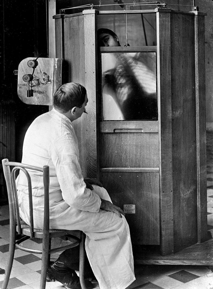 Dr Maxime Menard jäädvustamas patsiendi rindkere Cochini haiglas Pariisis, ca 1914. Foto: Jacques Boyer, Roger Viollet / Getty Images