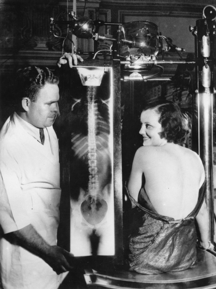 Näitlejanna Judith Allen ja dr Lester V. Donovan California tervisenäitusel esitlemas röntgenijäädvustust naise ideaalsest seljast, ca 1930. Foto: Imagno / Getty Images